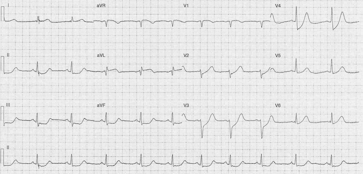 ECG Case 100a LITFL Top 100 EKG