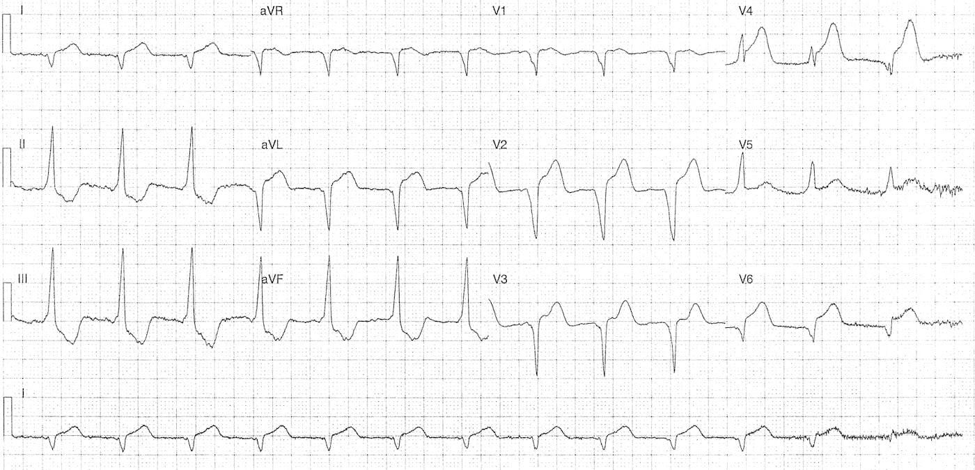 ECG Case 100b LITFL Top 100 EKG