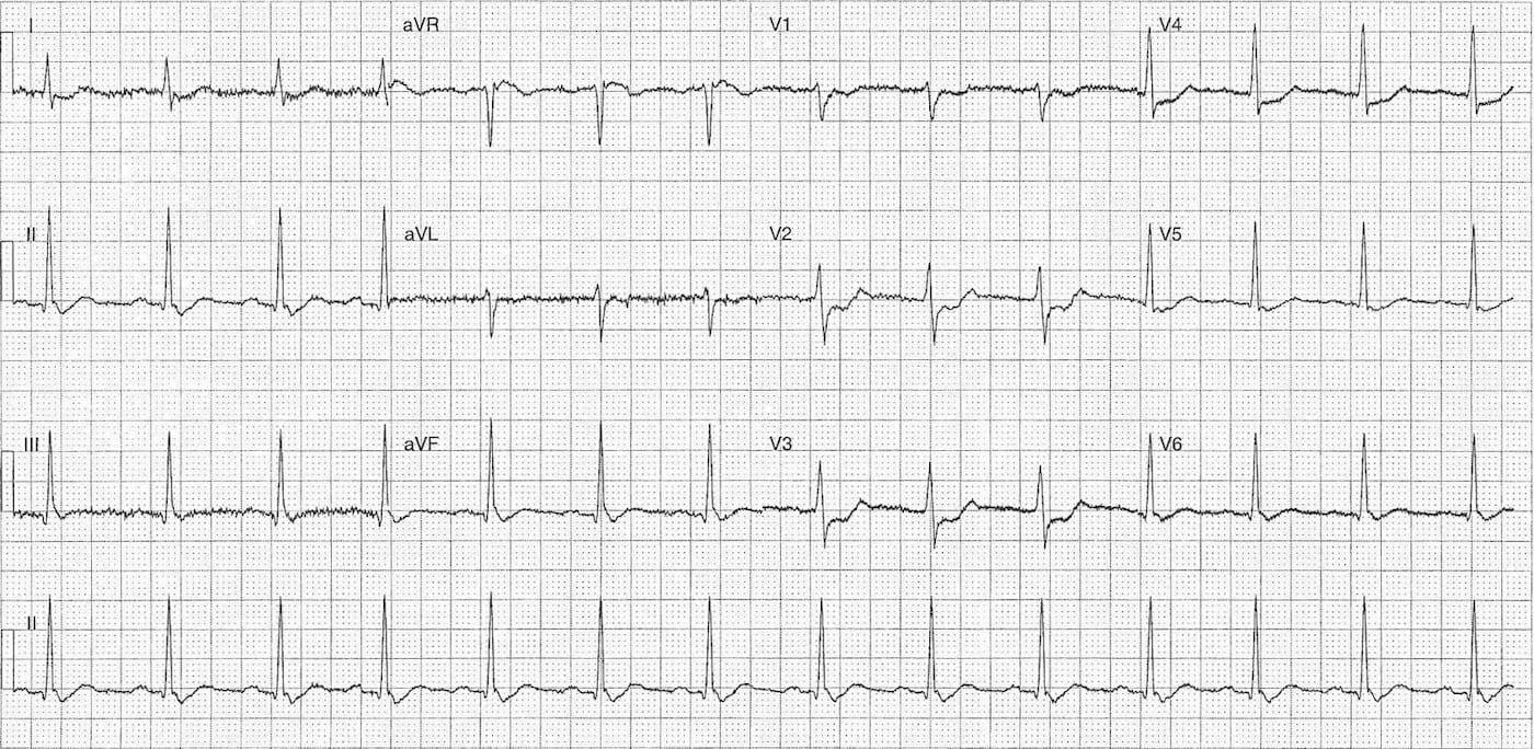 ECG Case 103a LITFL Top 100 EKG