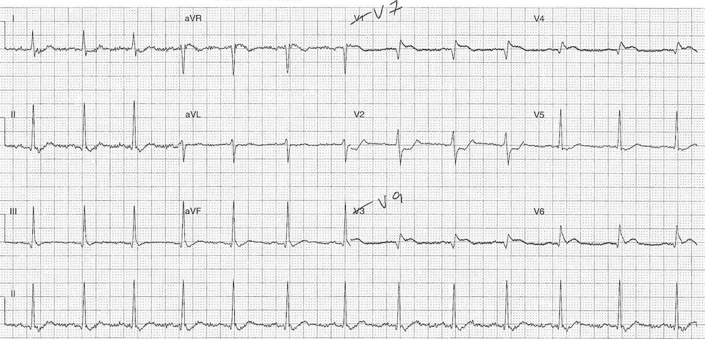 ECG Case 103b LITFL Top 100 EKG