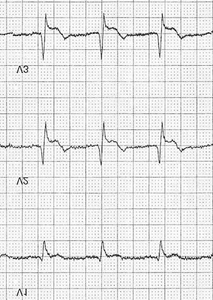 ECG Case 103c LITFL Top 100 EKG