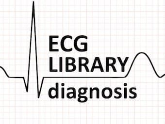 ECG-LIBRARY-diagnosis-LITFL-340-2