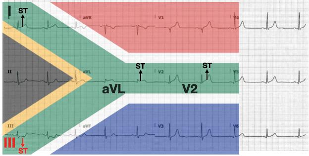 ECG SA Flag labelled