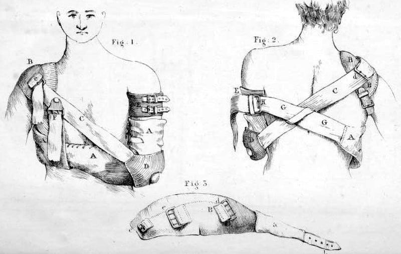 Henry Earle bandage for shoulder dislocation