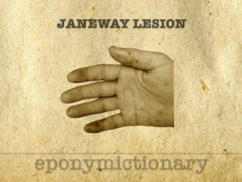 Janeway lesions 340