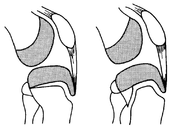 Ryu and Debenham Type IV tibial tubercle fracture
