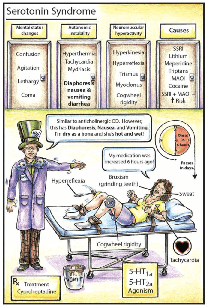 Serotonin syndrome tox flashcards