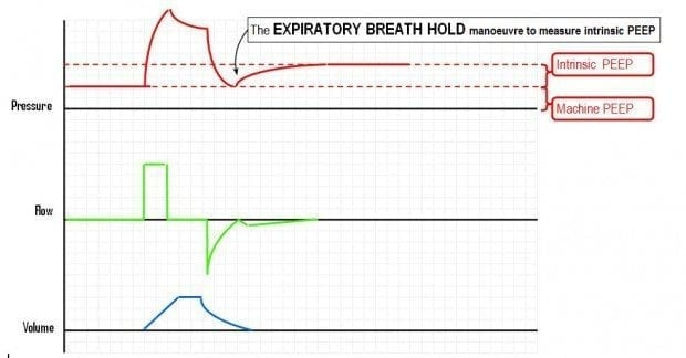 The-expiratory-hold-manoeuvre-620x324