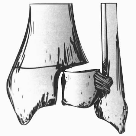 Tillaux Fracture