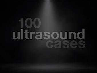 Top 100 ultrasound 340