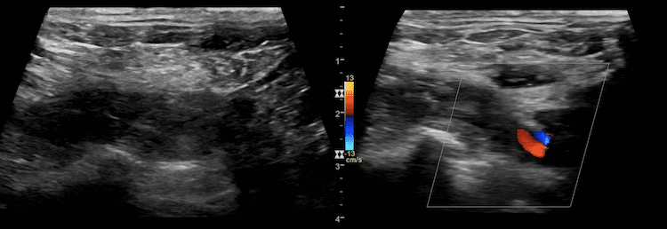 Ultrasound Case 085 6 Subclavian supraclavicular