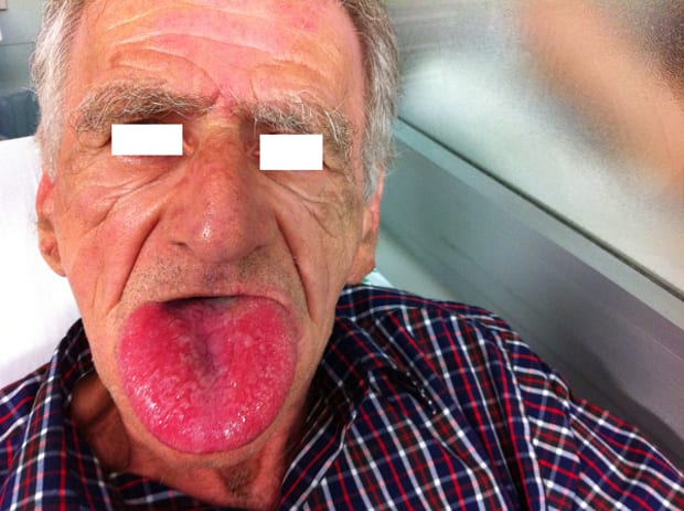 angioedema-tongue