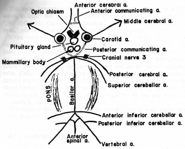 circle of Willis spider