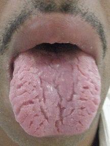 Lingula Plicata