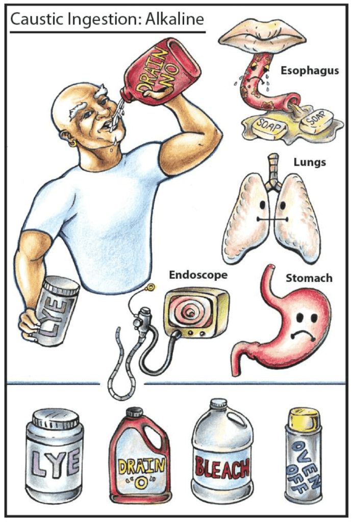 toxic ingestion alklali Tox flashcard