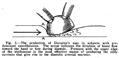 Blumgart-Ernstene murmur vasodilation