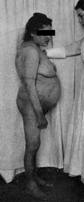 Cushing's Syndrome I (1912)