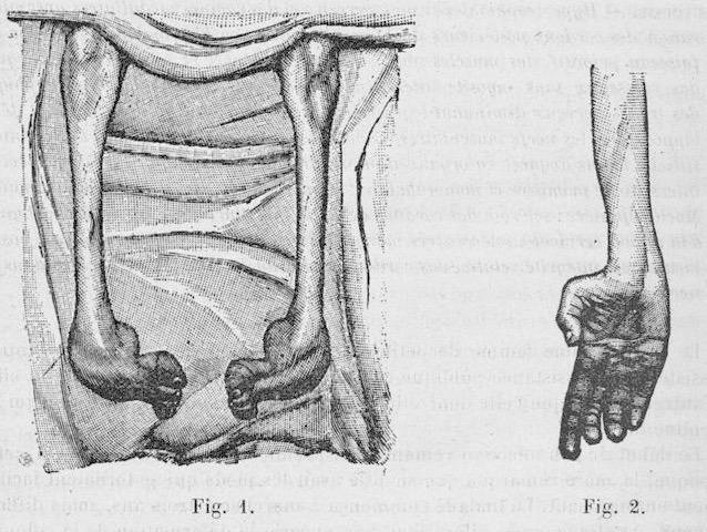 Dejerine-Sottas disease 1893 67-68