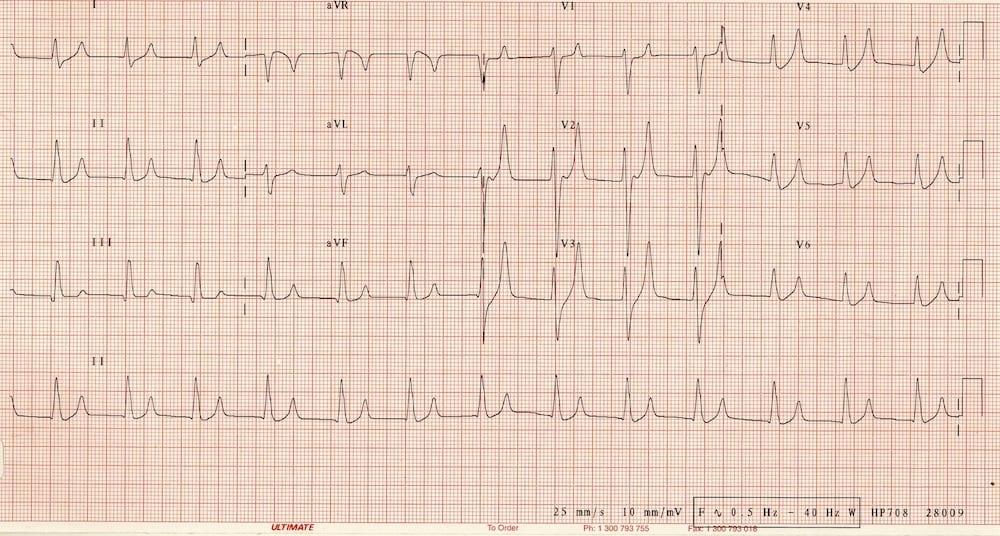 ECG Hyperkalaemia 7.1