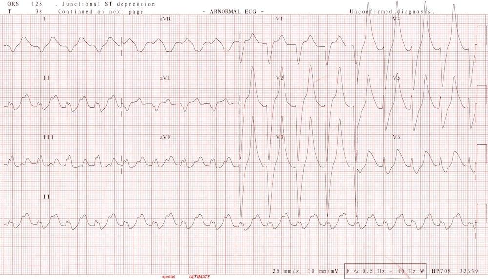 ECG Potassium hyperkalaemia 9.2