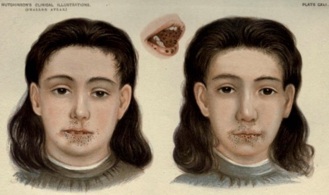 Hutchinson Pigmentation of lip and mouth 1896 Plate CXLI