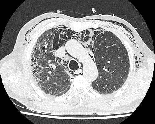 Image 4 CT Subcutaneous emphysema