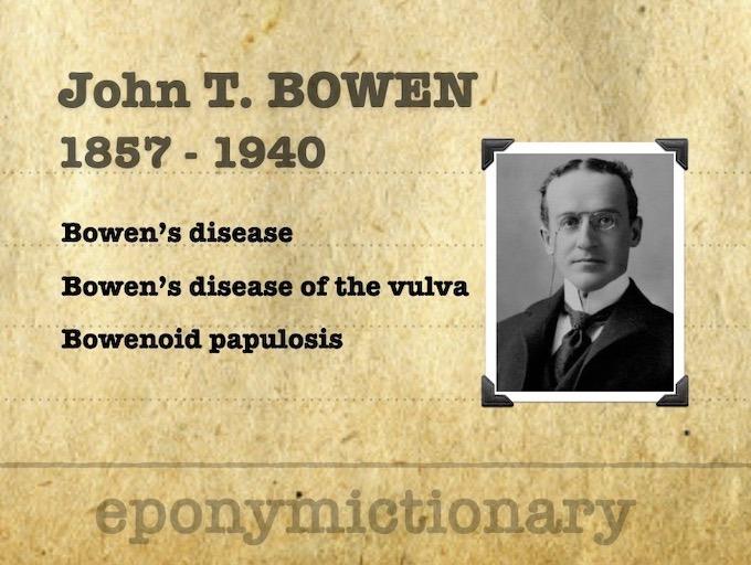 John Templeton Bowen (1857 – 1940) 340