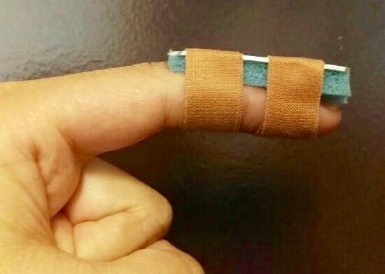 Mallet finger Zimmer splint