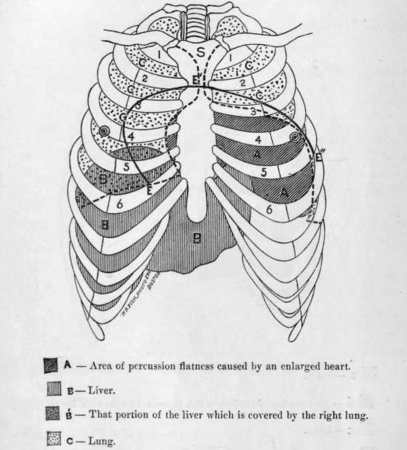 Rotch sign pericardial effusion