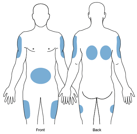 Subcutaneous (SC) injection sites