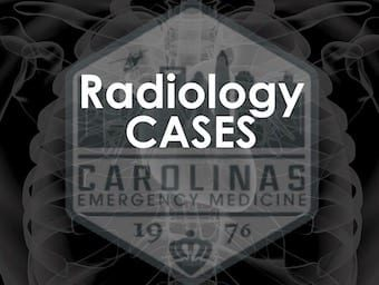 CMC radiology Cases 340 logo