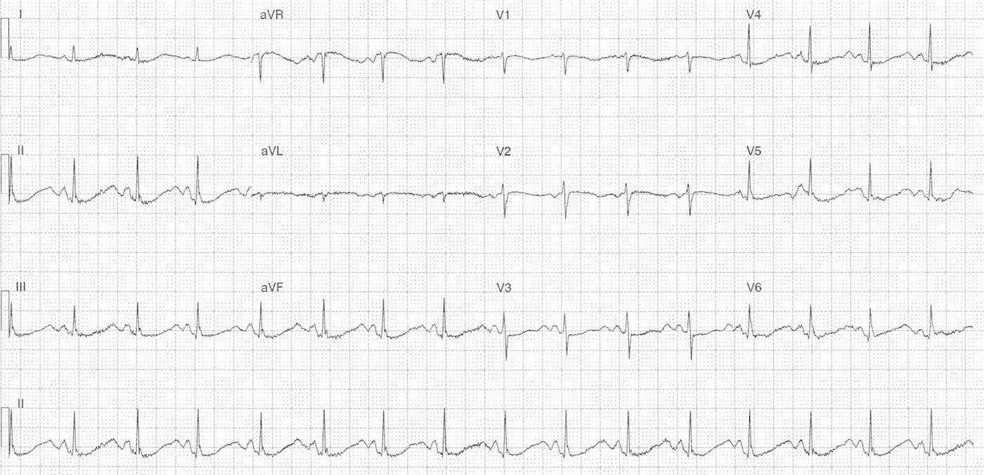ECG Case 101 LITFL Top 100 EKG
