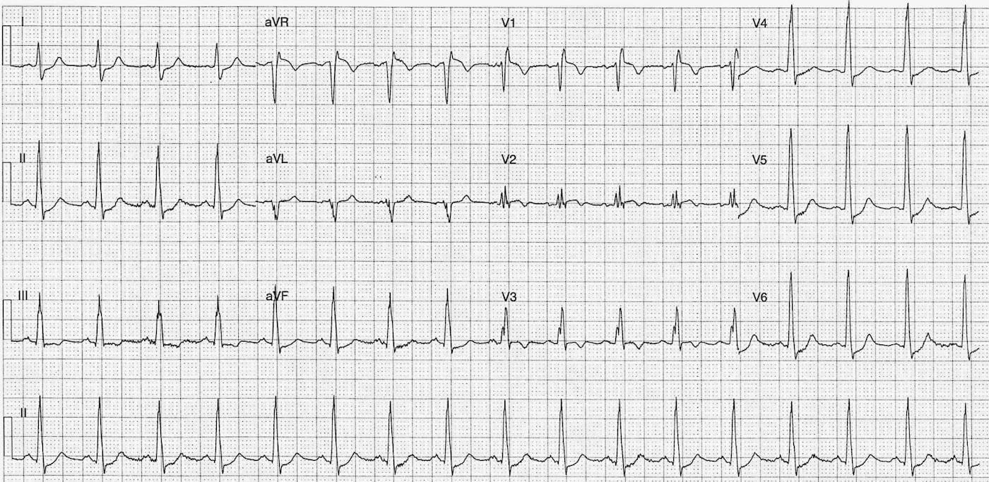ECG Case 104 LITFL Top 100 EKG