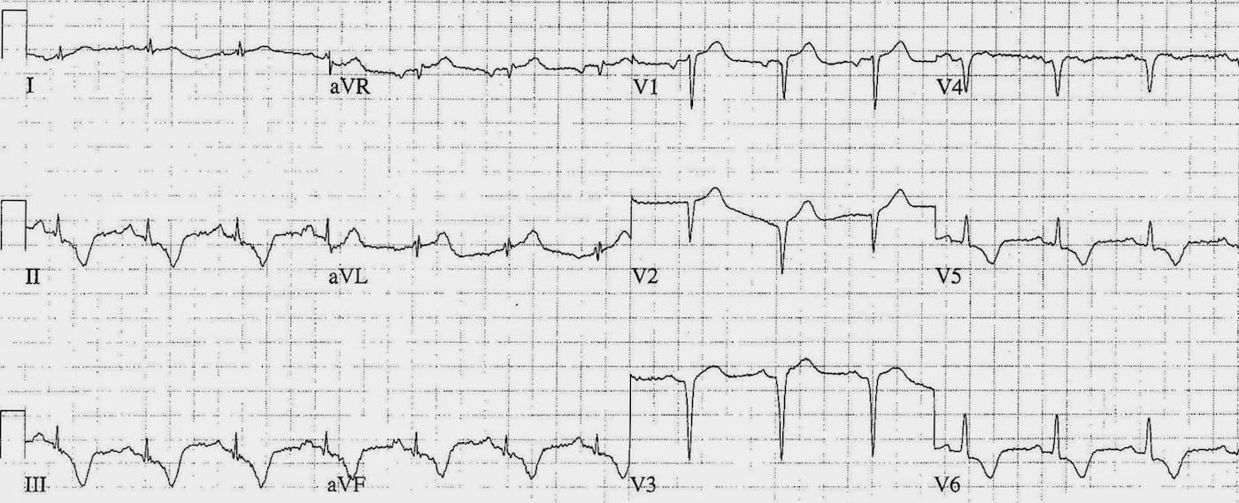ECG Case 106 LITFL Top 100 EKG
