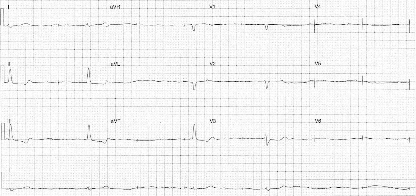 ECG Case 107 LITFL Top 100 EKG