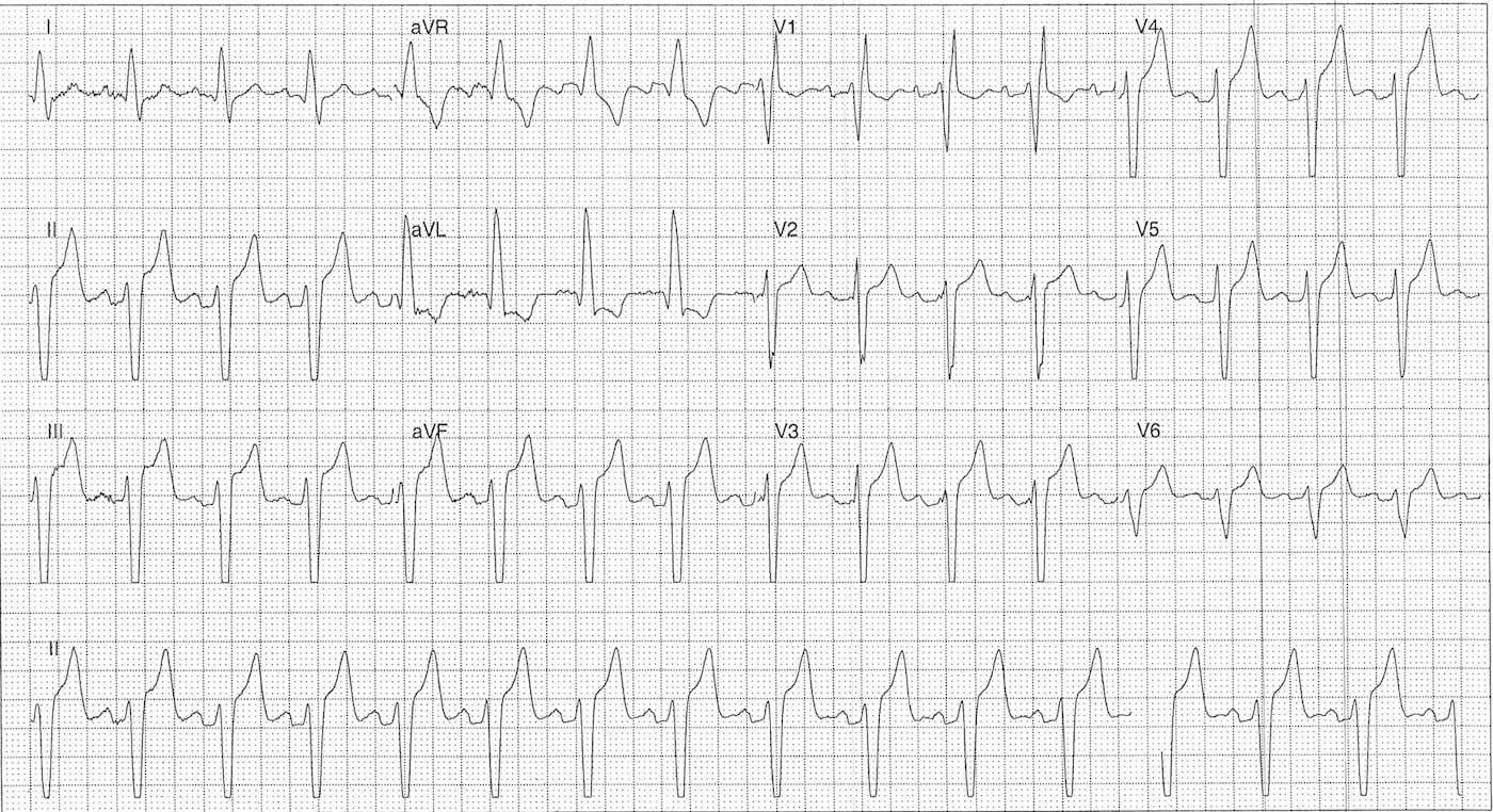 ECG Case 108a LITFL Top 100 EKG