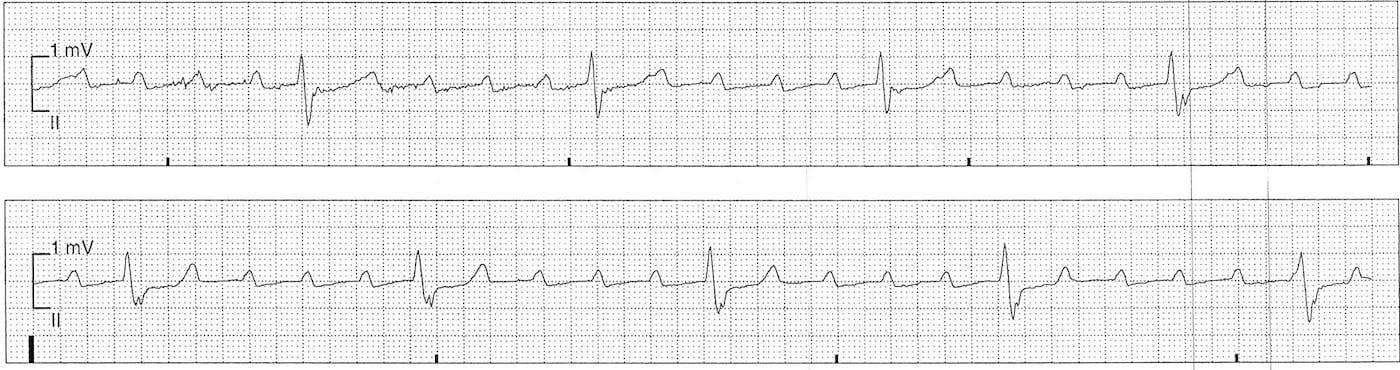 ECG Case 108b LITFL Top 100 EKG