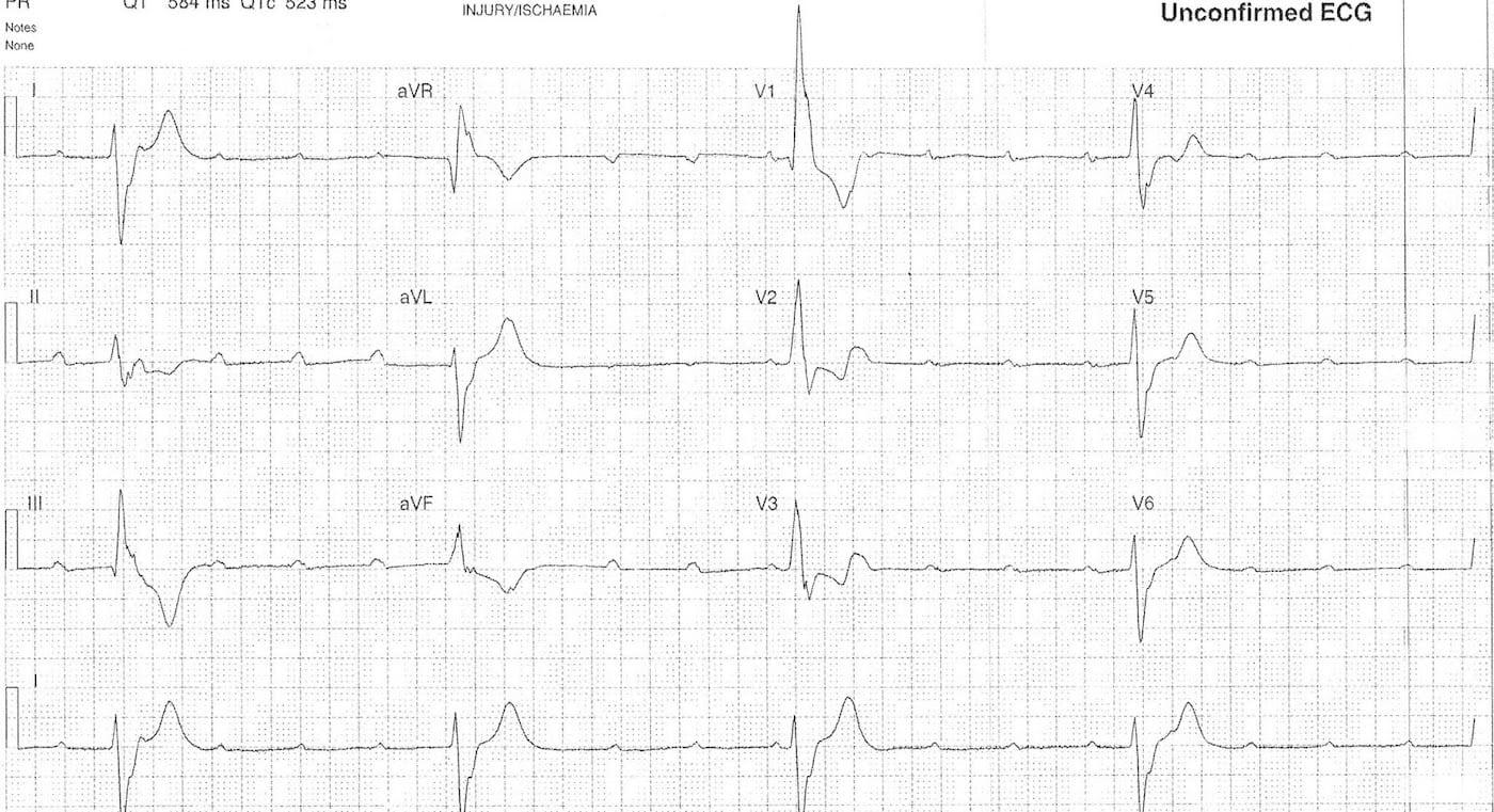 ECG Case 108c LITFL Top 100 EKG