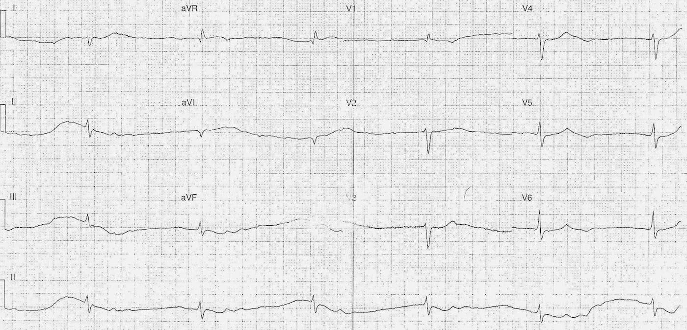 ECG Case 109a LITFL Top 100 EKG