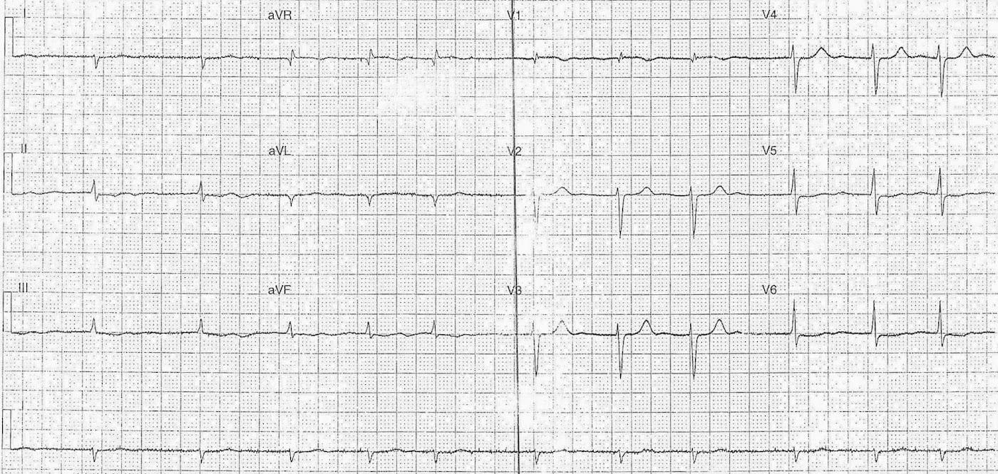 ECG Case 109b LITFL Top 100 EKG.