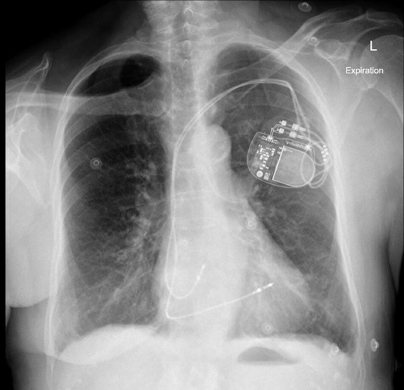 ECG Case 111 AP CXR PPM Normal