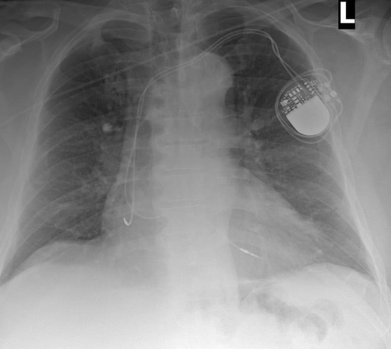 ECG Case 111 AP CXR Post PPM