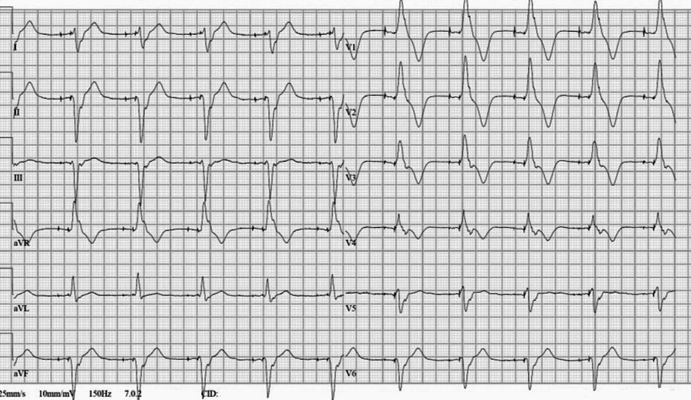 ECG Case 111 LITFL Top 100 EKG.