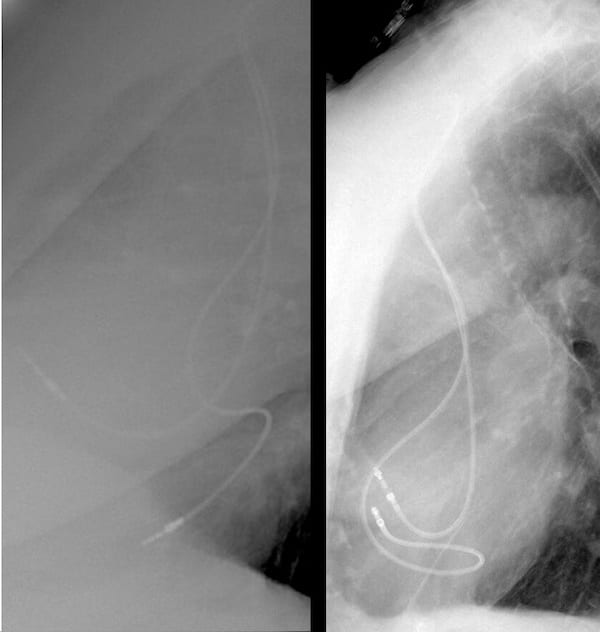 ECG Case 111 Lat cardiac comparison