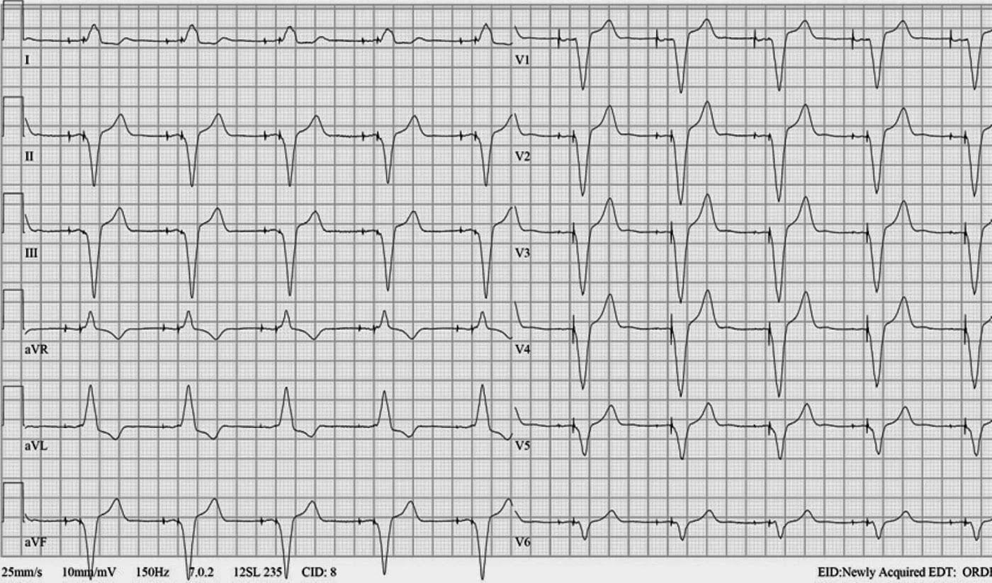 ECG Case 111 RV Placement