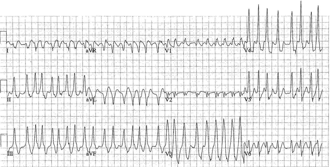 ECG Case 112 LITFL Top 100 EKG