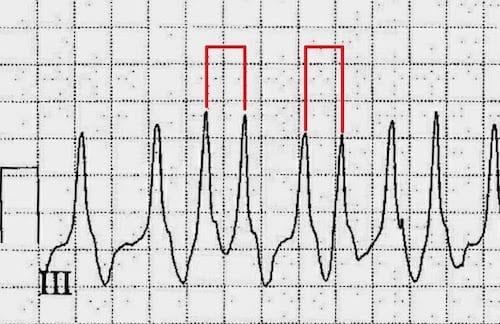 ECG Case 112a LITFL Top 100 EKG