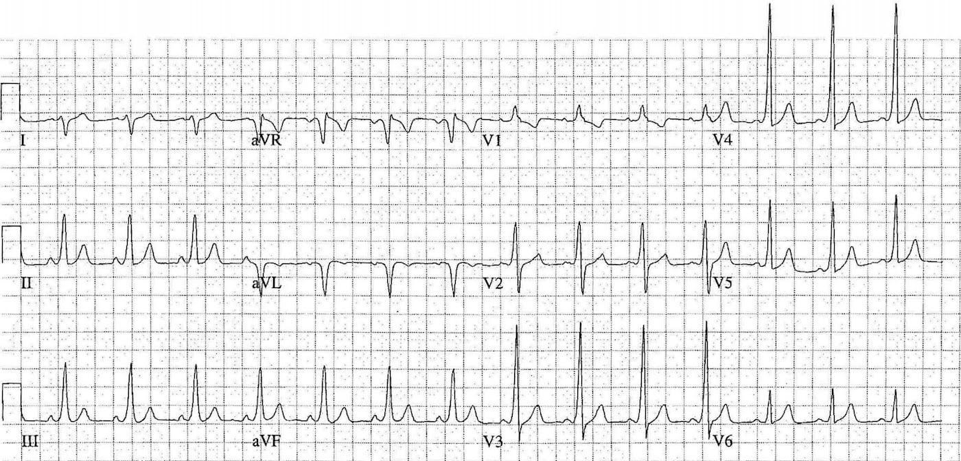 ECG Case 112c LITFL Top 100 EKG