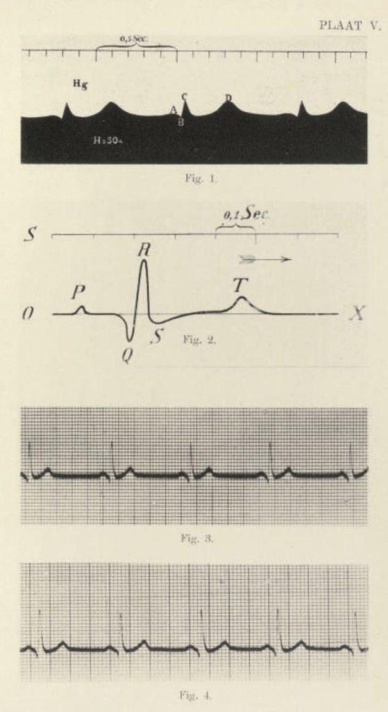 Galvanometrische registratie van het menschelijk electrocardiogram
