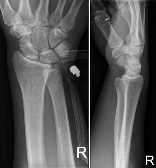 DRUJ dislocation initial XR